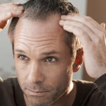 Town Hit By Hair Plugs Addiction Wave